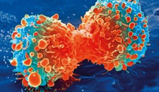 How to Stop the Growth of Cancer Cells With Cabozantinib
